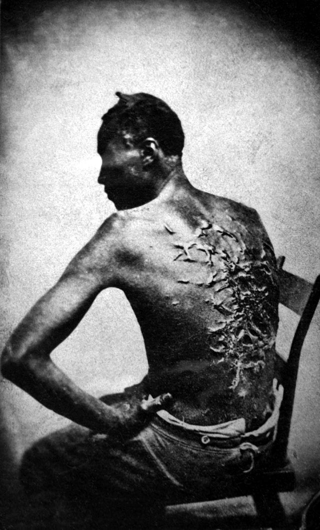 Fotografia de 1863 revela as cicatrizes de flagelação portadas por homens escravizados na Louisiana. Imagens assim foram eram distribuídas nas campanhas de militância do movimento Abolicionista que Frederick Douglass integrou e iluminou com suas ações e obras..